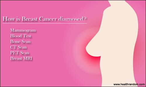 breast cancer diagonsed