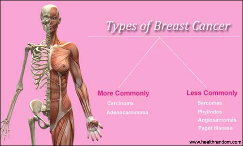 breast cancer type