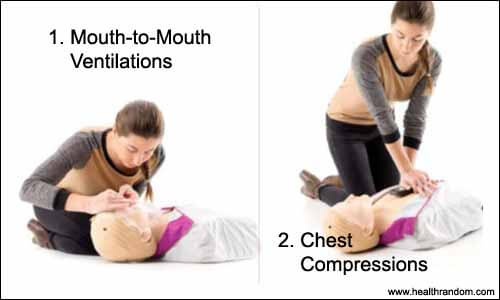 cpr procedures