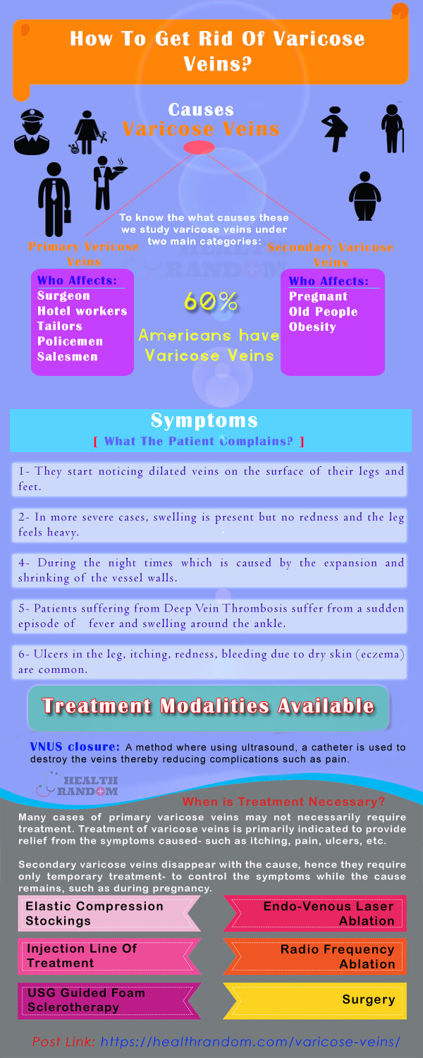 Varicose Veins Info-graphics